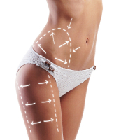 Female body with the drawing arrows on it isolated on white. Fat lose, liposuction and cellulite removal concept.